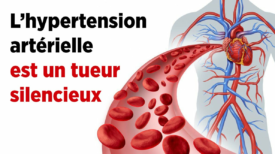 9 aliments qui favorisent l'hypertension artérielle