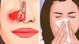 """"""" Il vaut mieux prévenir que guérir """" 3 gestes simples pour empêcher la propagation du coronavirus"""