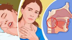 7 signes que vous pourriez avoir eu le coronavirus avant l'épidémie – Symptômes inclus