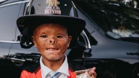 Un bébé grièvement brulé dans un incendie trouve finalement une famille après 7 ans