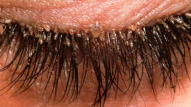Les médecins alertent du retour des poux de cils à cause de la tendance des extensions de cils