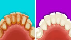 6 Astuces géniales qui t'aideront à éliminer la plaque dentaire naturellement