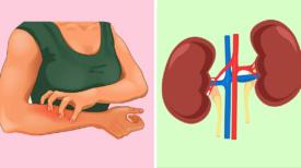 Votre corps vous avertit avant que vous ne tombiez malade : 8 signes que vos reins ont besoin d'attention